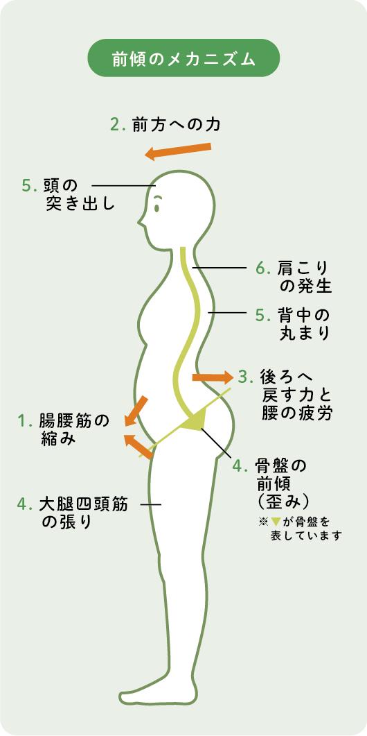 背中 の コリ 原因